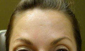 Botox Patient Front Angle