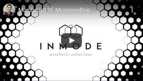 Video on Morpheus8 RF Microneedling Click to See