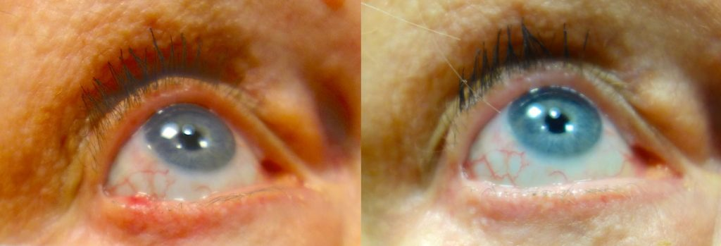 Eyelid Skin Cancer Patient-1