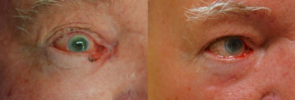 Eyelid Skin Cancer Patient-2