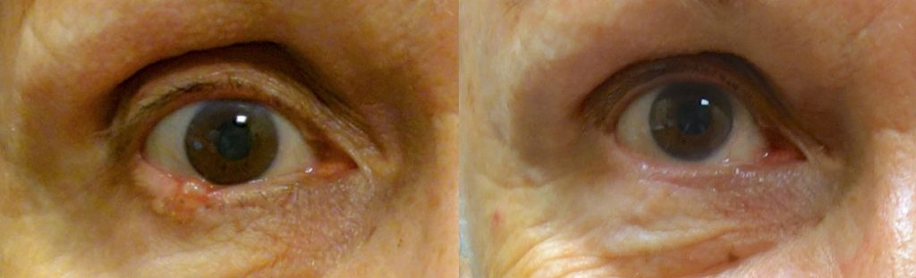 Eyelid Skin Cancer Patient-3