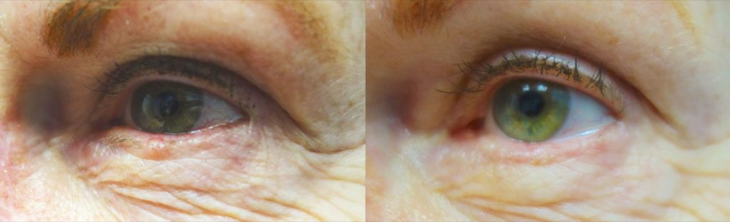 Eyelid Skin Cancer Patient-5