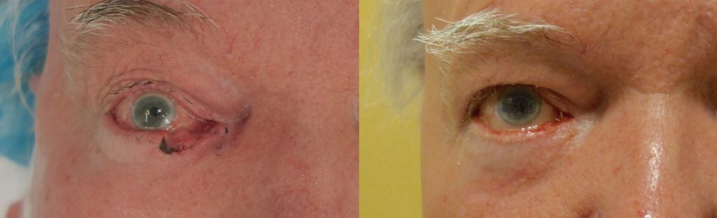 Eyelid Skin Cancer Patient-7