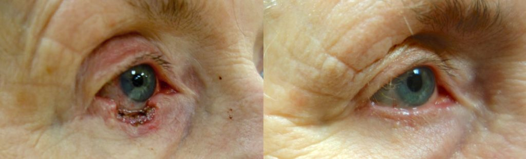 Eyelid Skin Cancer Patient-9