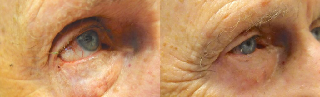 Eyelid Skin Cancer Patient-10