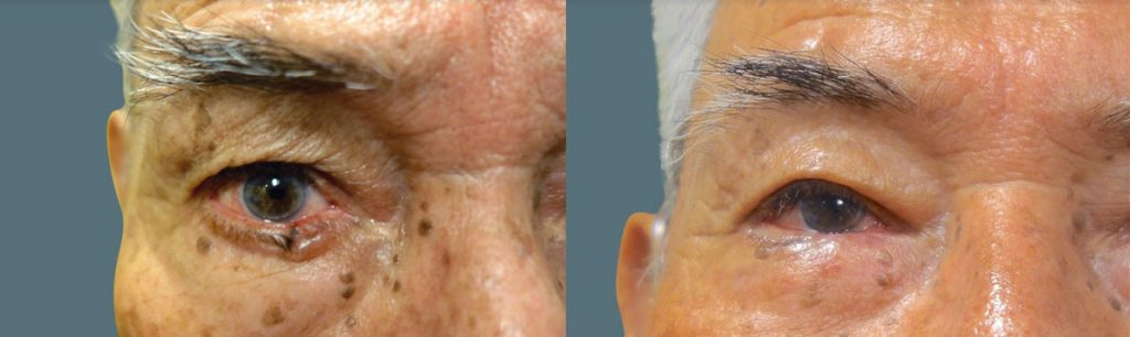 Eyelid Skin Cancer Patient-8