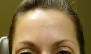After Botox Treatment Patient 1 Front Angle