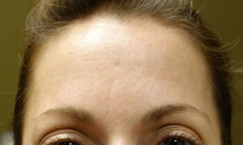Before Botox Treatment Patient 1 Front Angle