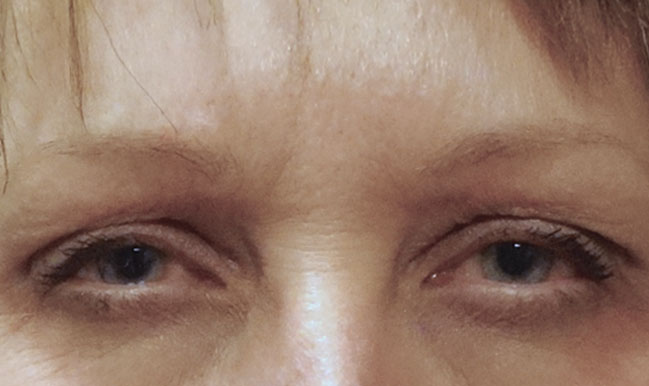 After Botox Treatment Patient 11 Front Angle