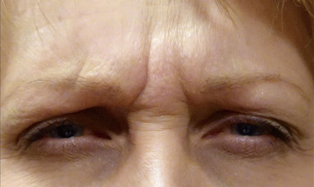 Before Botox Treatment Patient 11 Front Angle