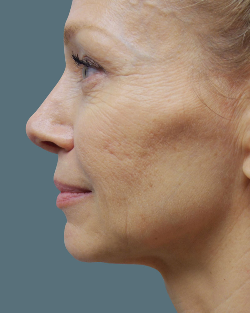 After Facetite and Accutite Treatment Patient 19 Side Angle