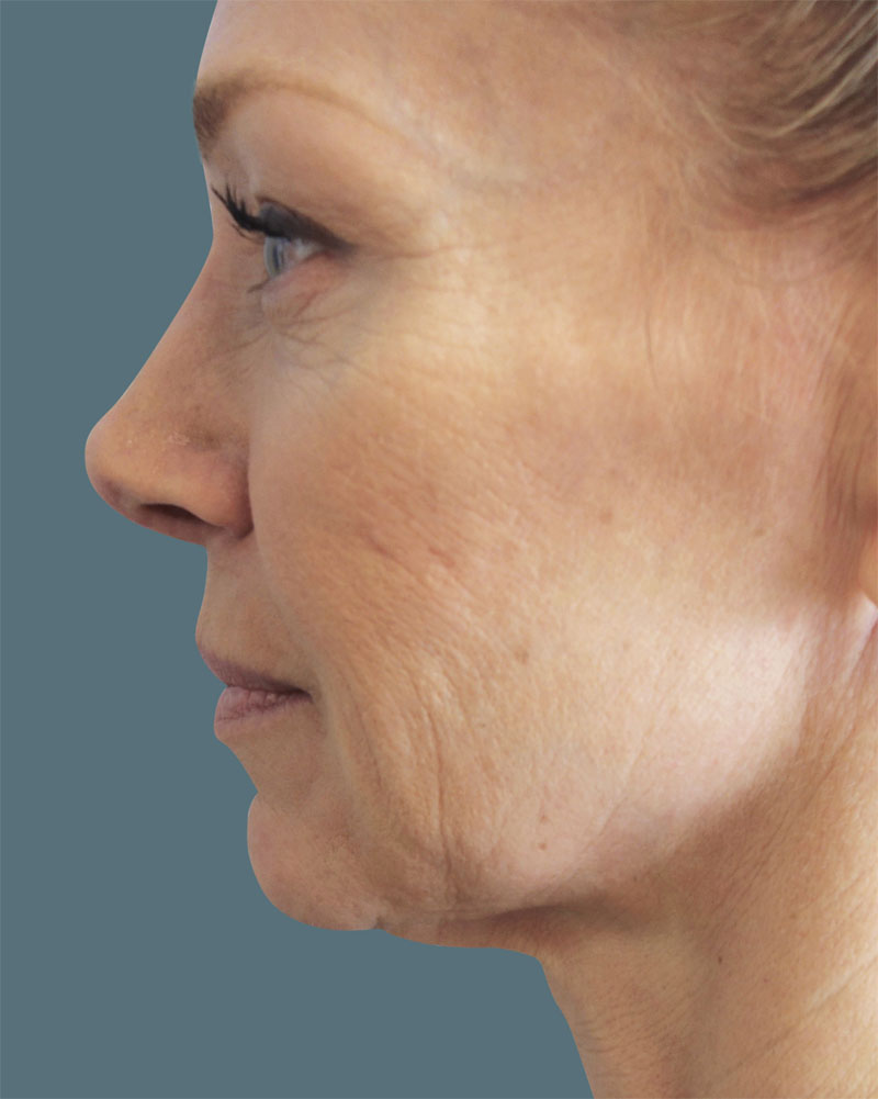 Before Facetite and Accutite Treatment Patient 19 Side Angle