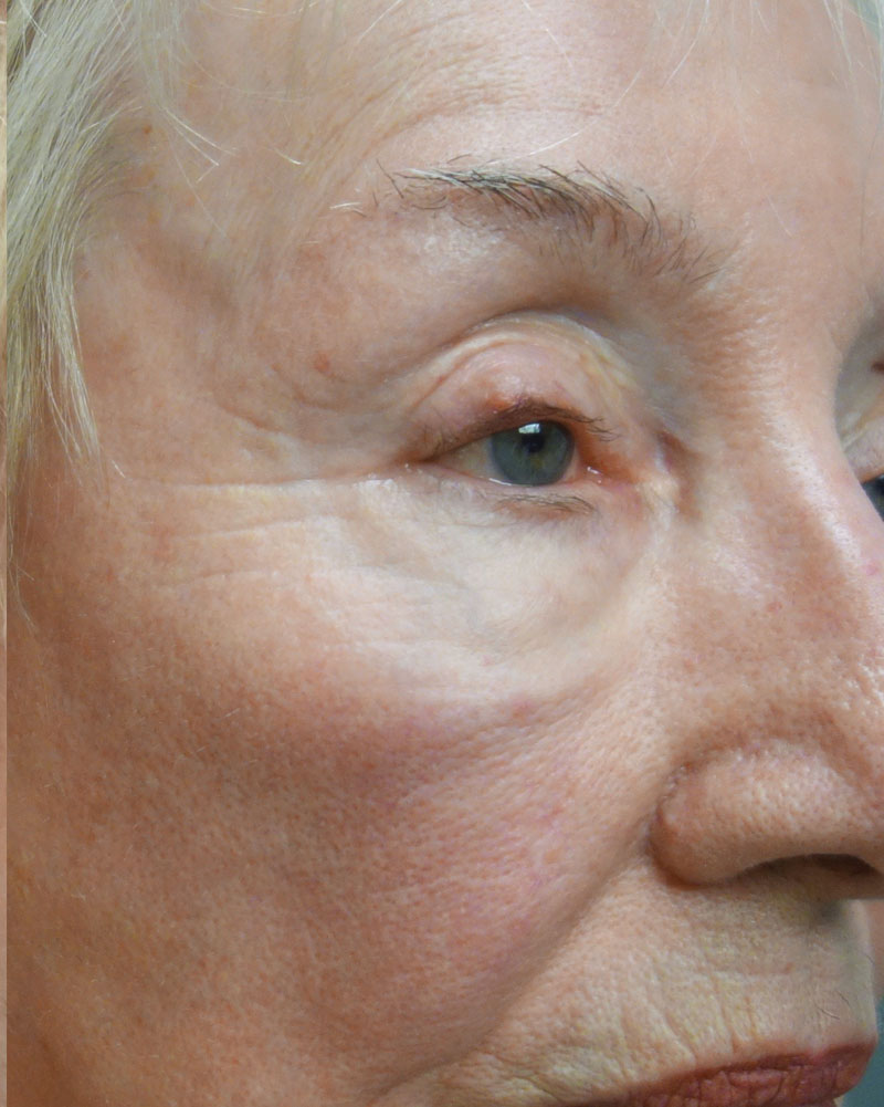 After Morpheus8 Microneedling Treatment Patient 20 Side Angle