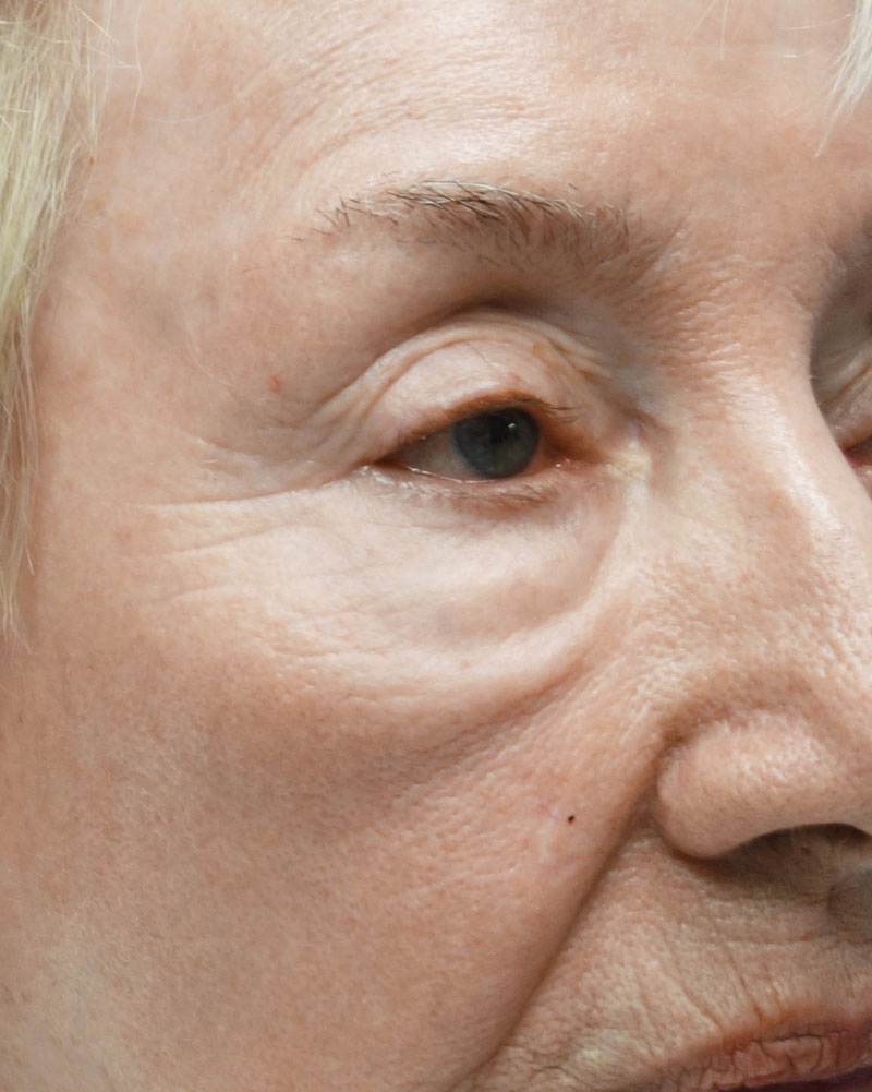Before Morpheus8 Microneedling Treatment Patient 20 Side Angle